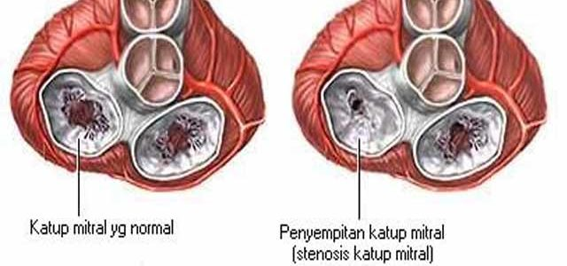 Penyakit Katup Jantung