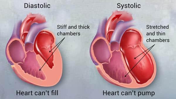 Sakit gagal jantung